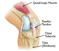 Osgood Schlatter's syndrome